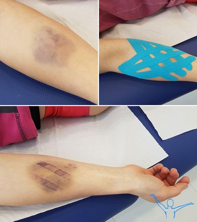 Kinesiotaping limfatyczny - aplikacja na siniaki