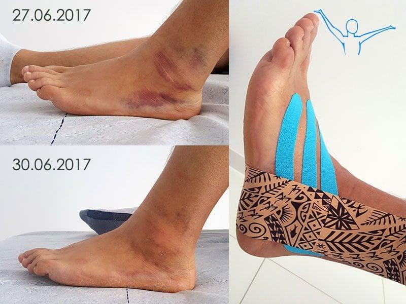 Skręcenie kostki - rehabilitacja a efekty