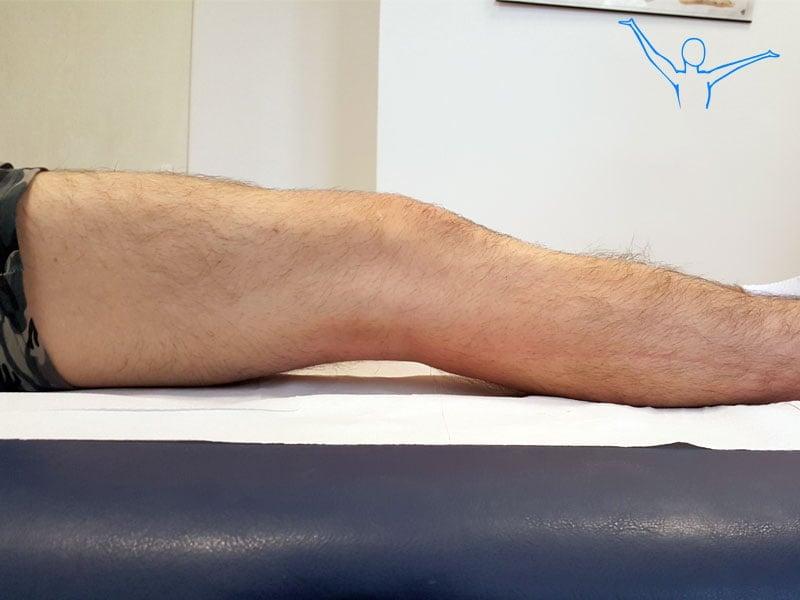 Artroskopia kolana skutki zaniedbania rehabilitacji po zabiegu 2