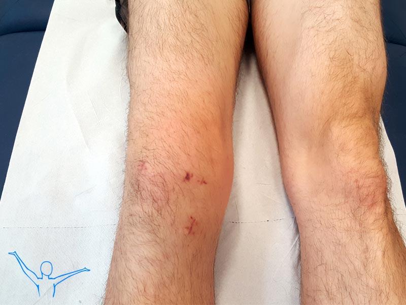 Artroskopia kolana skutki zaniedbania rehabilitacji po zabiegu