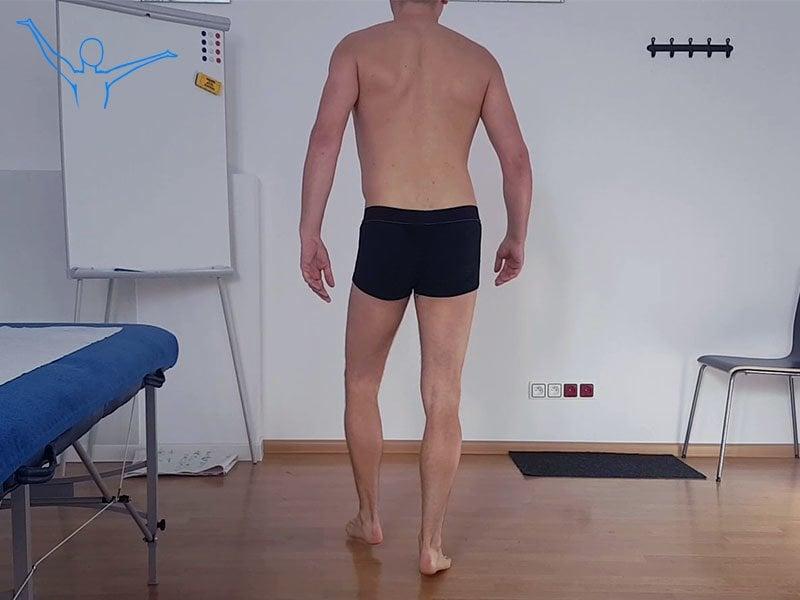 Przepuklina kręgosłupa - rehabilitacja