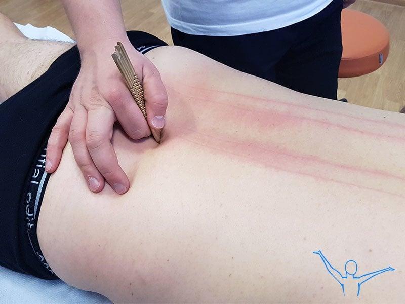 Zwyrodnienie kręgosłupa - rehabilitacja