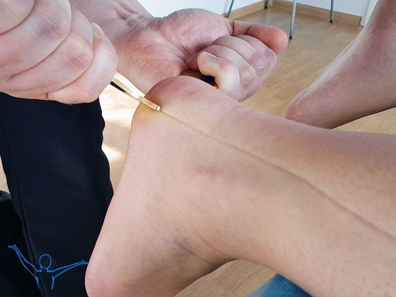 Ból pięty - fizjoterapia