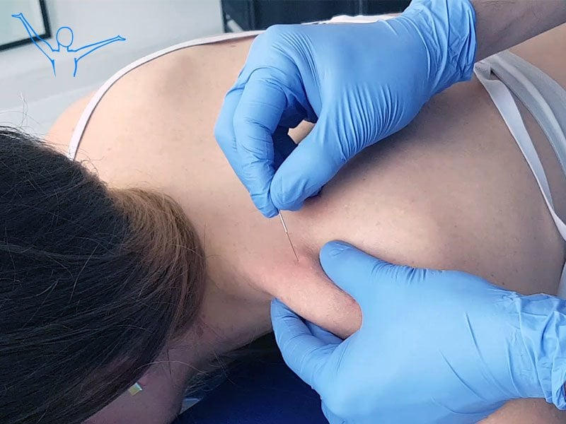 Igłoterapia – terapia mięśniowo-powięziowych punktów spustowych