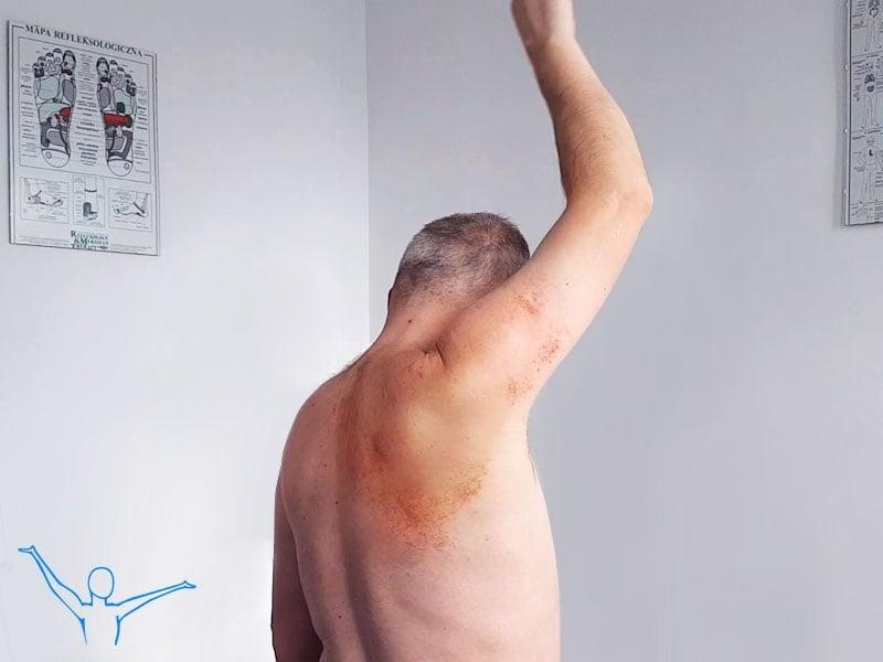 Ból ramienia - fizjoterapia
