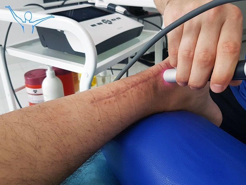 Zerwane ścięgno Achillesa - leczenie