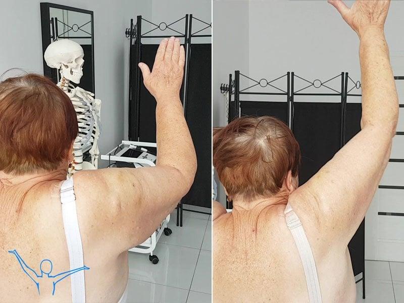 Uszkodzenie stożka rotatorów - rehabilitacja