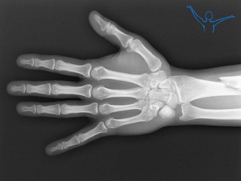 Złamanie nasady dalszej kości promieniowej