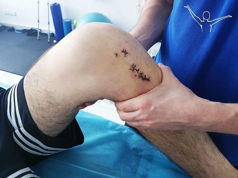 Rekonstrukcja więzadła krzyżowego przedniego - rehabilitacja