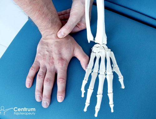 Złamanie kości łódeczkowatej