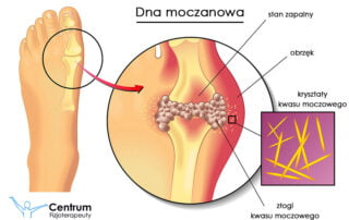 Dna moczanowa a układ ruchu