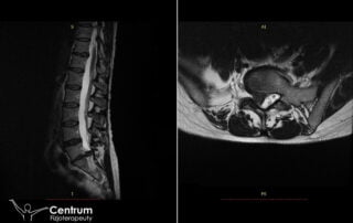 Przepuklina kręgosłupa lędźwiowego