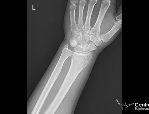 Złamanie nasady dalszej kości promieniowej (zdjęcie)